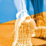 La traumatologia dello sport & la medicina rigenerativa